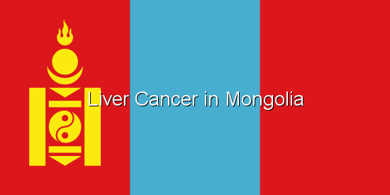 Liver Cancer in Mongolia