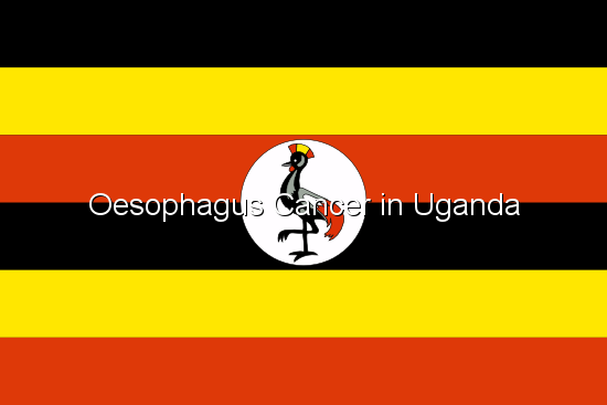 Oesophagus Cancer in Uganda